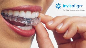 Invisalign at the Perfect Smile Clinic Ltd